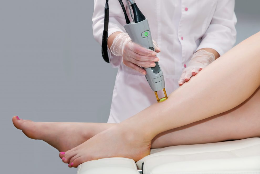 What laser power parameters do you need to follow for hair removal? All you need to know about hair laser machines.