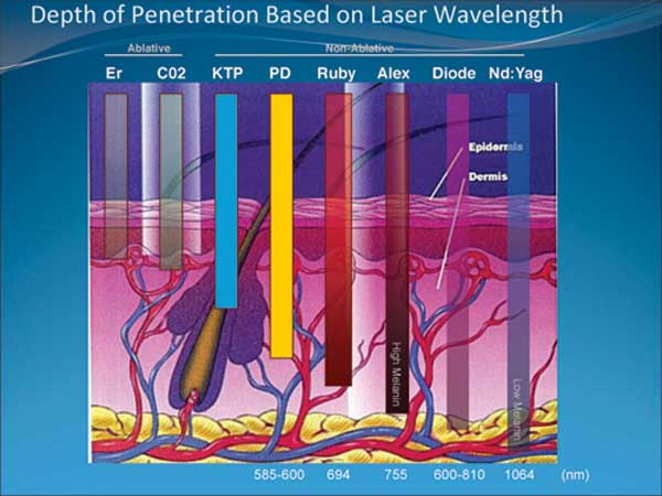 About Low Level Laser Therapy: Fat removal, lipoplasty / liposuction techniques.